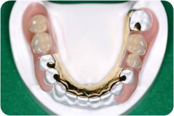 ノーマル(前歯、奥歯)タイプ