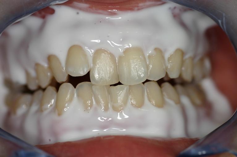 歯ぐきを守るペーストで、周りを覆っていきます。